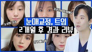 [눈성형] 눈매교정, 앞트임, 위트임 2개월 경과 리뷰…