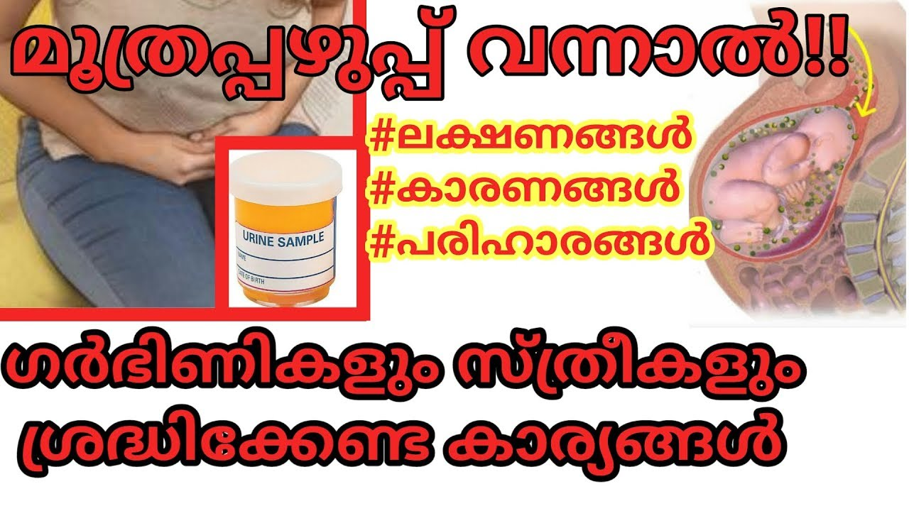 Download Urinary Tract Infection(UTI)treatments malayalam video
