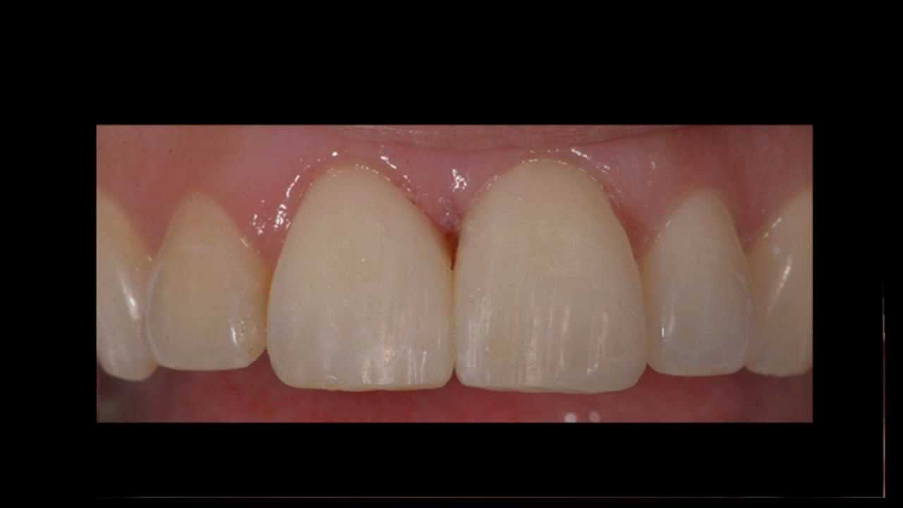 Cosmetic Filling to Close Tooth Gap - Oasis Dental Milton Cosmetic Dentist - 905-876-2747