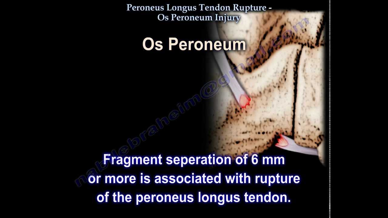 Peroneus Longus Tendon Rupture Os Peroneum Injury Everything You