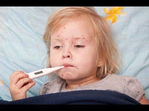 Краснуха симптомы лечение в домашних условиях
