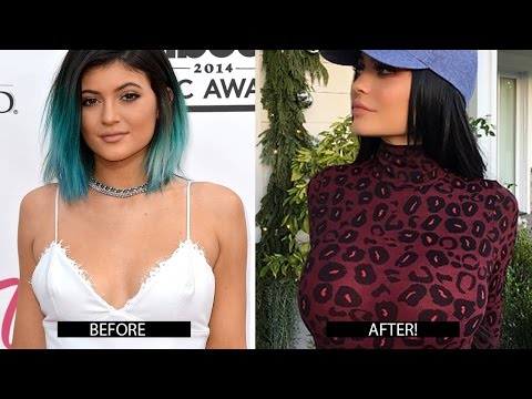 Kylie Jenner BOOB JOB?! New Bigger Chest Photos Spark Plastic Surgery Rumors