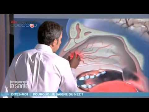 les tumeurs des voies nasales nez bouché congestion nasale