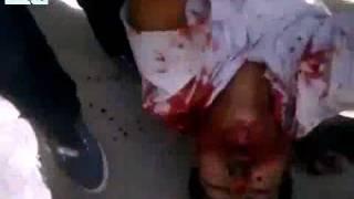 Преступлениясирийского режима вгороде Камышлы в Сирии убивали невинных демонстрантов Das syrische Regime begangenen Verbrechen in der Stadt Qamishli in Syrien töteten unschuldige