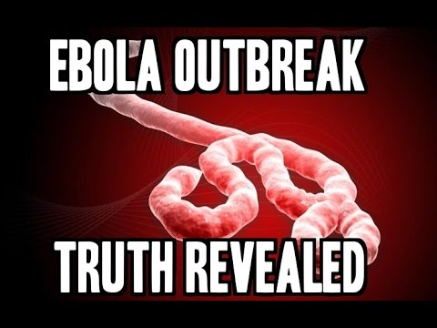 Ebola Virus Epidemic Outbreak in West Africa 2014 Symptoms and Prevention tips