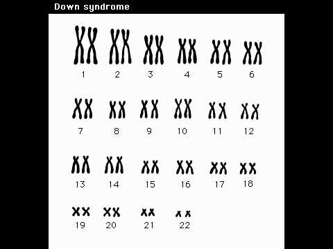 Downs Syndrome Chromosome Abnormality MOV