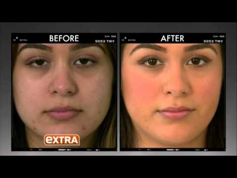 Dr. Ava Shamban on EXTRA : Reduce Acne Scars and Laugh Lines