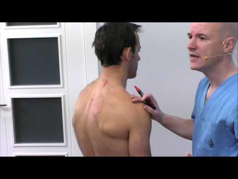 Mal funcionamiento del hgado - Problemas  musculares que  provocan. Fisioterapia Logroo