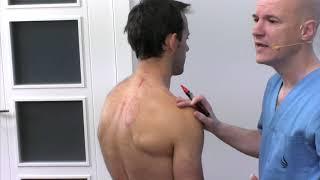 Mal funcionamiento del hígado - Problemas  musculares que  provocan. Fisioterapia Logroño