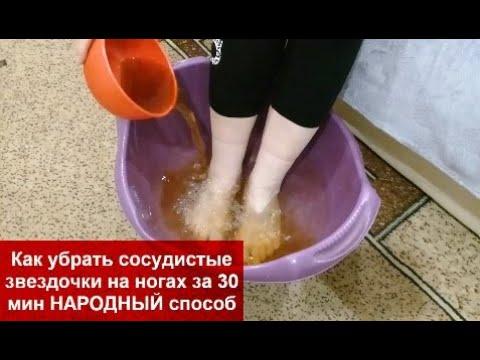 Как убрать сосудистые звездочки на ногах за 30 мин НАРОДНЫЙ способ helen marynina