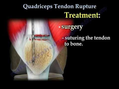 Quadriceps Tendon Rupture  Everything You Need To Know  Nabil Ebraheim