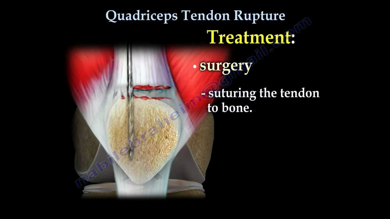 Quadriceps Tendon Rupture - Everything You Need To Know - Nabil ...