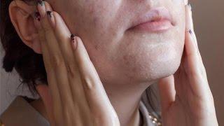 Cách tẩy tế bào chết cho da mặt từ đường trắng||MUB