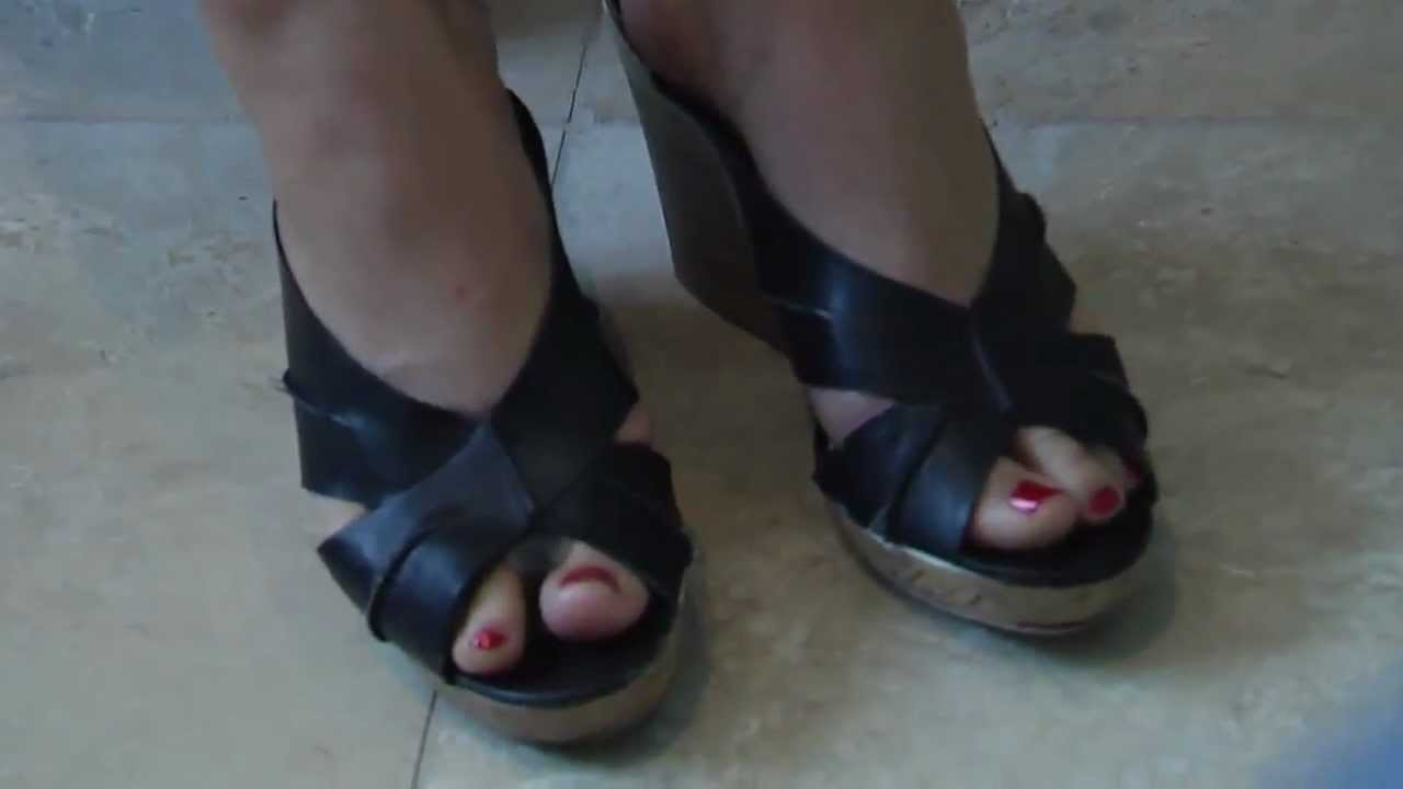 Women And Bunions Youtube