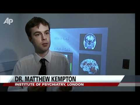 Doctors: Depression Shrinks Parts of the Brain