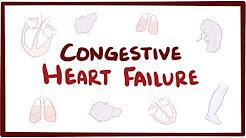 Herzinsuffizienz – systolisch, Linksherzinsuffizienz, Rechtsherzinsuffizienz sowie Symptome