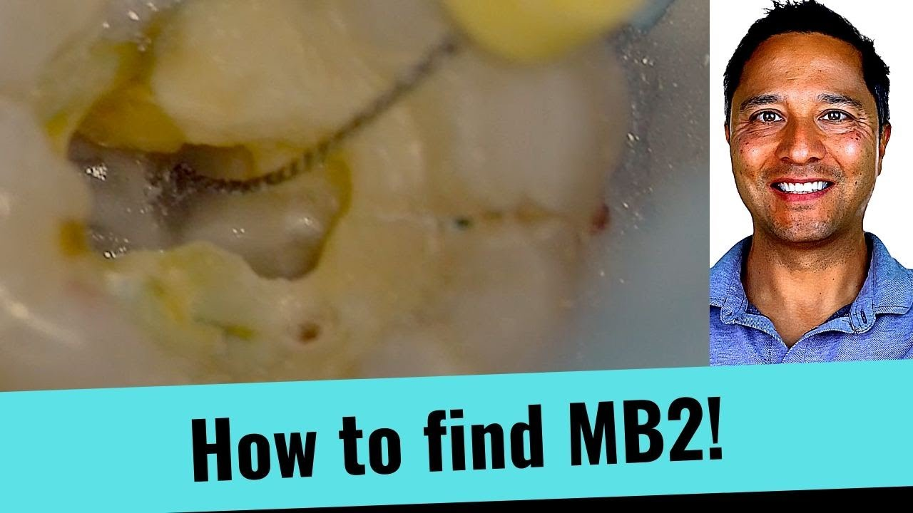 Download Live!  Root Canal - How to the find MB2 Canal (Simple Tips)