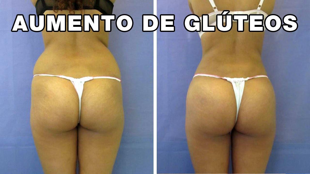 Levantamiento de gluteos sin cirugia antes y despues de adelgazar