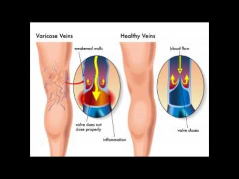 how to treat varicose veins : treatment for varicose veins  varicose veins natural home treatment