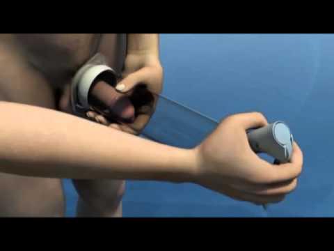 Manual Erection System® bei Erektionsstörungen