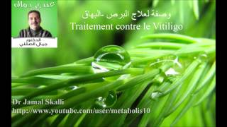 Traitement du Vitiligo وصفات د.جمال الصقلي:علاج البرص -البهاق