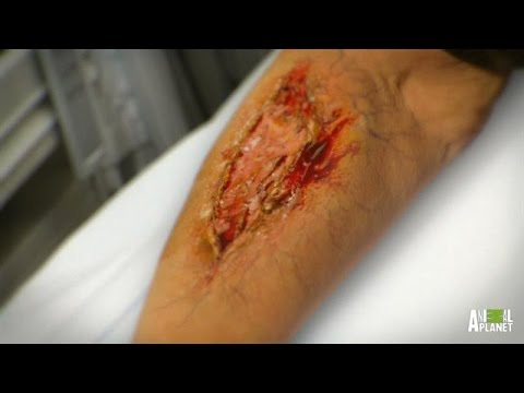 Woman's Arm Literally Eaten Alive by Flesh-Eating Bacteria
