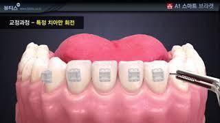 치아 교정 과정 (뷰티스 A1 스마트 브라켓)