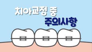[거제바른이치과]치아교정 중 주의사항은?