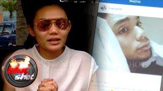 Fakhrul Razi Jatuh Sakit Rina Nose Bingung Hot Shot 03 April 2016