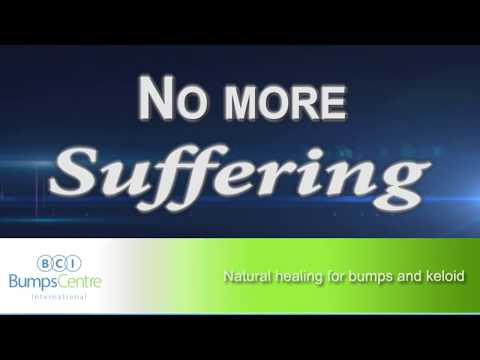 Natural Healing For Bumps And Keloid - Bumps Centre international