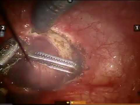 Robotic Assisted Laparoscopic Suprapubic Simple Prostatectomy Step