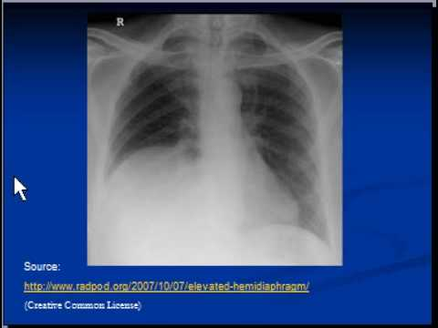 Chest x-ray interpretation --Raised hemidiaphragm  sc 1 st  YouTube & Chest x-ray interpretation --Raised hemidiaphragm - YouTube