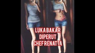 LUKA BAKAR CHEF RENATTA!!! Profil chef RENATTA MOELOEK