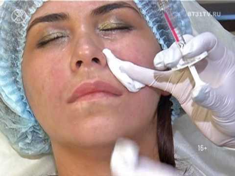 Коррекция глубоких морщин с помощью инъекций гиалуроновой кислоты