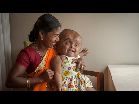 Swollen Head Baby: Roona Begum's Incredible Journey - Barcroft TV  - yqK8DxXF7oQ -
