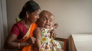 Swollen Head Baby: Roona Begum