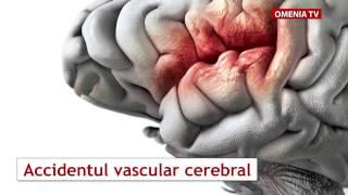 Скачать Accidentul Vascular Cerebral