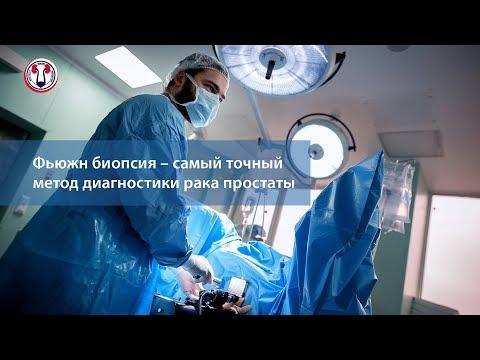 Фьюжн биопсия – самый точный метод диагностики рака простаты
