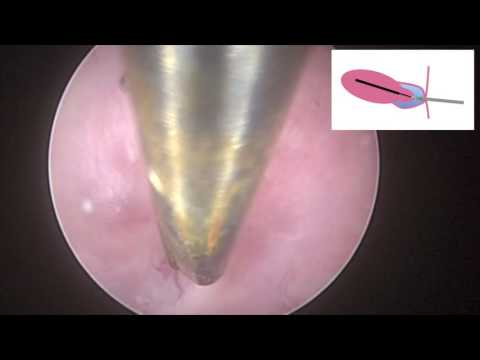 Hysteroscopic Management Of A Stenotic Cervix