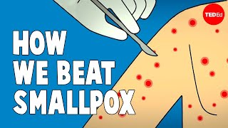 Download How we conquered the deadly smallpox virus - Simona Zompi Mp3 and Videos