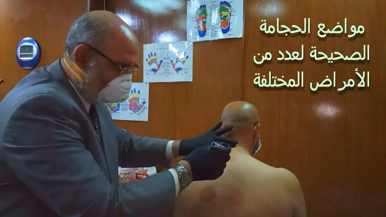 مواضع الحجامة الصحيحة لعدد من الأمراض المختلفة | الدكتور أمير صالح
