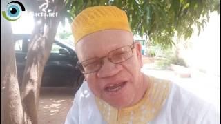 Albinos : S'épanouir malgré les injustices