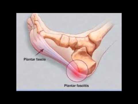 Fascia pain in plantar fasciitis