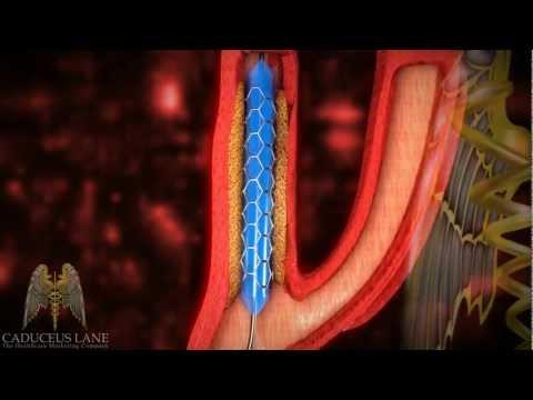 3D Medical Video (HD) - Carotid Artery Stenting