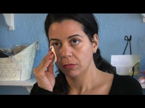 Аллергия на глазах, под глазами и вокруг глаз
