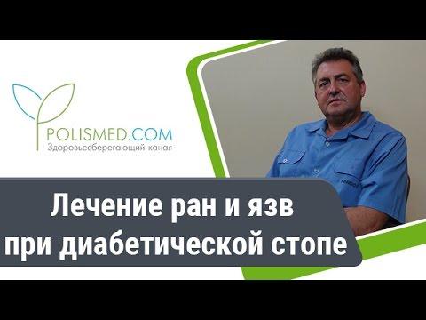 Троксевазин при геморрое: инструкция, лечение, отзывы