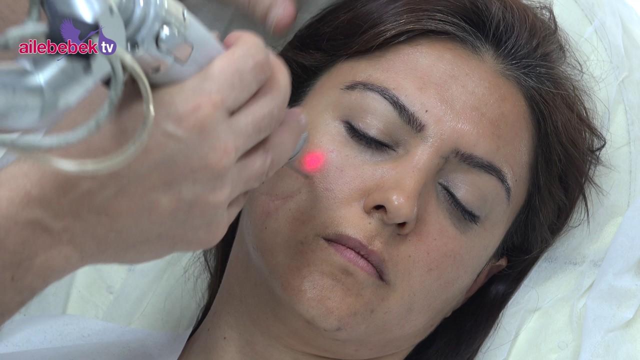 Sivilce Lekeleri Tedavisi Karbon Peeling Yöntemi: Karbon Peelingin Faydaları