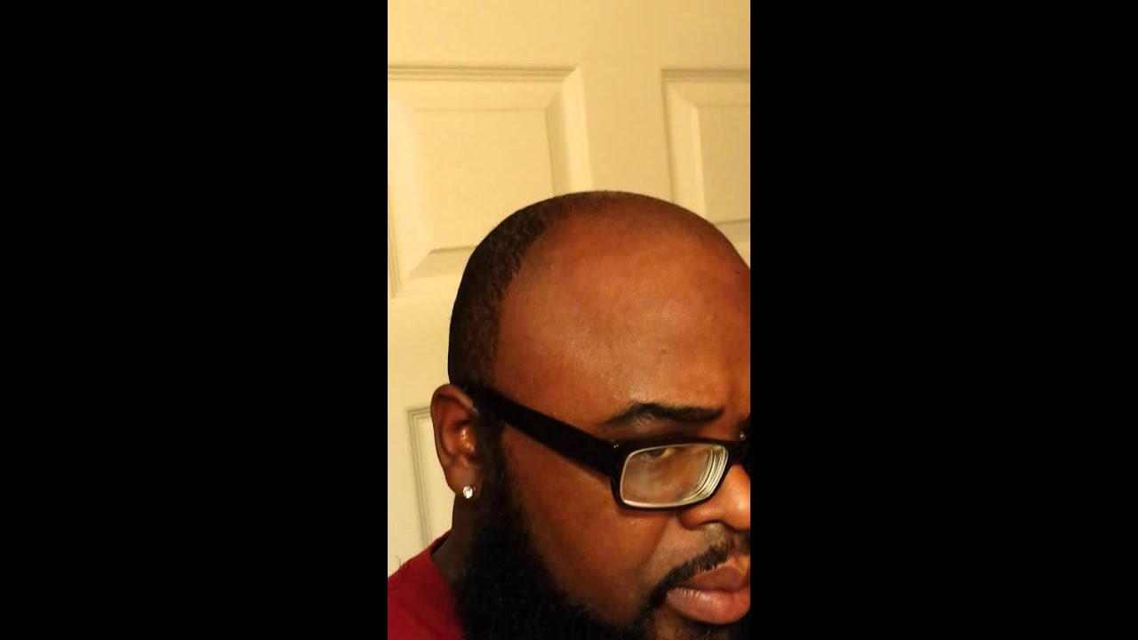 how to fix your hairline