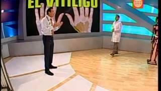 Dr. TV Perú (28-10-2013) - B1 - Tema del día: Vitiligo