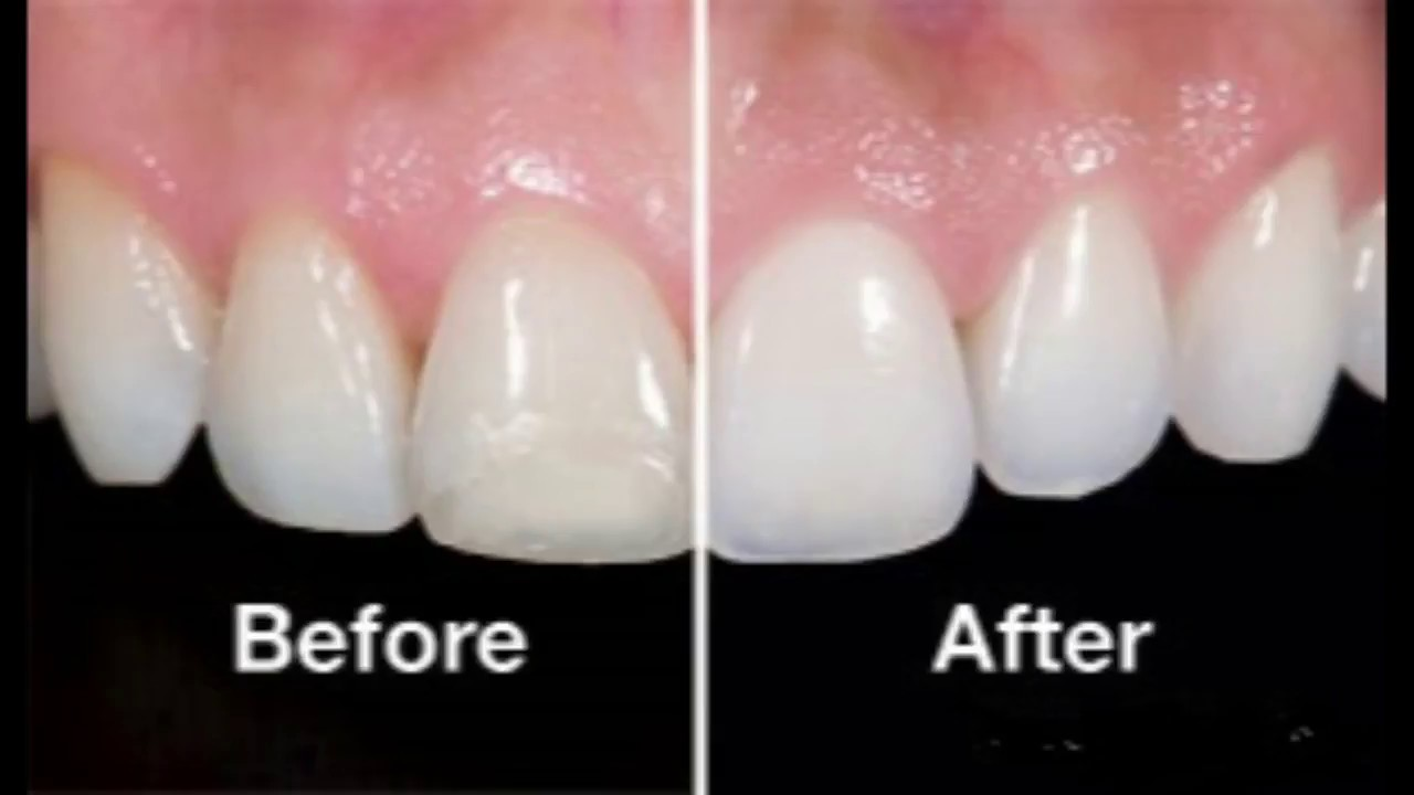 Tooth Enamel Loss at a Young Age photo